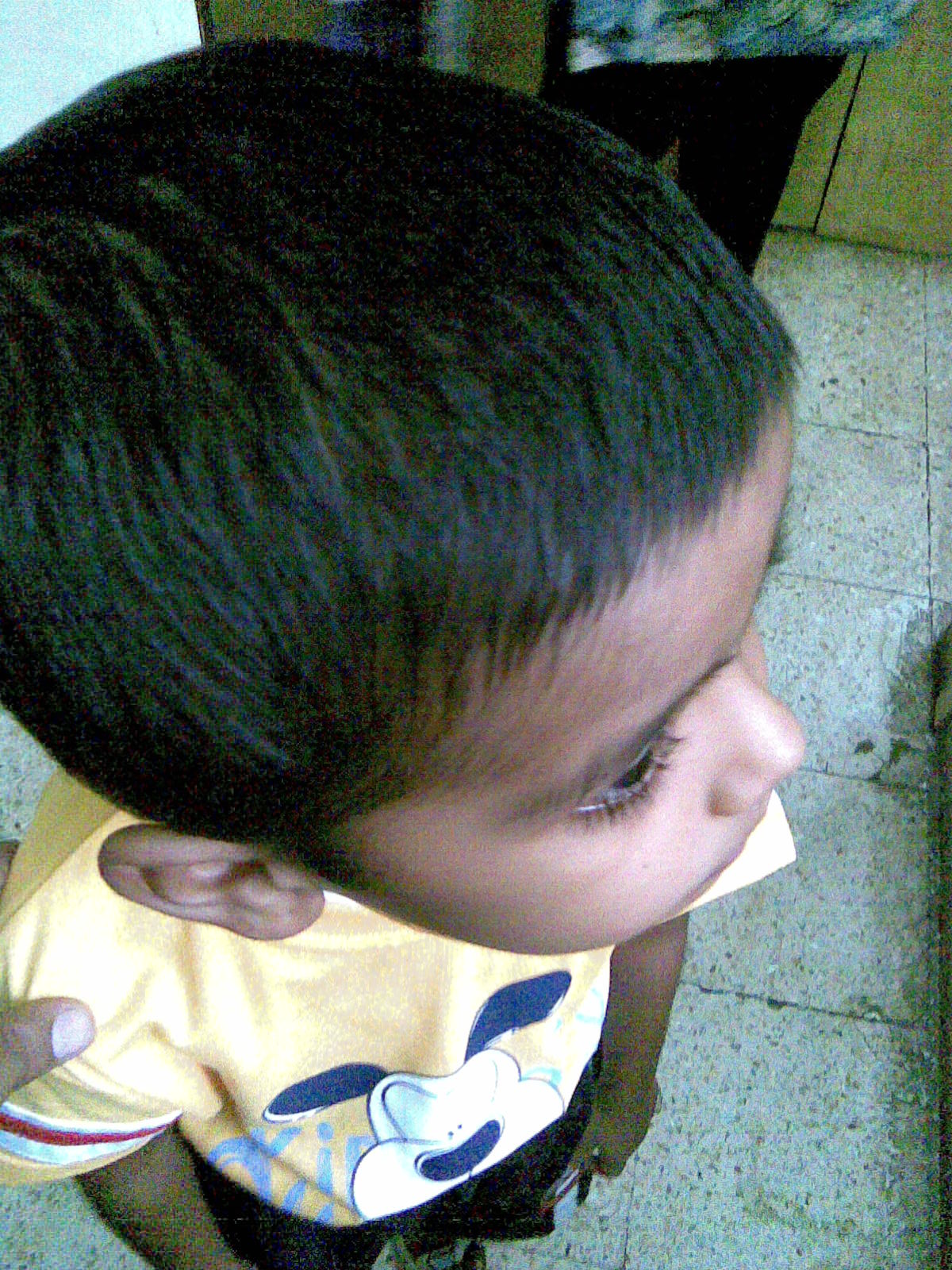 Alopecia Cures on Alopecia After Treatment