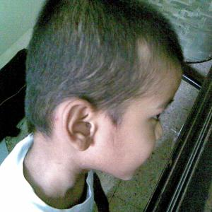 Alopecia before treatment
