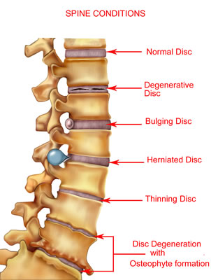 Spinal Disc Herniation